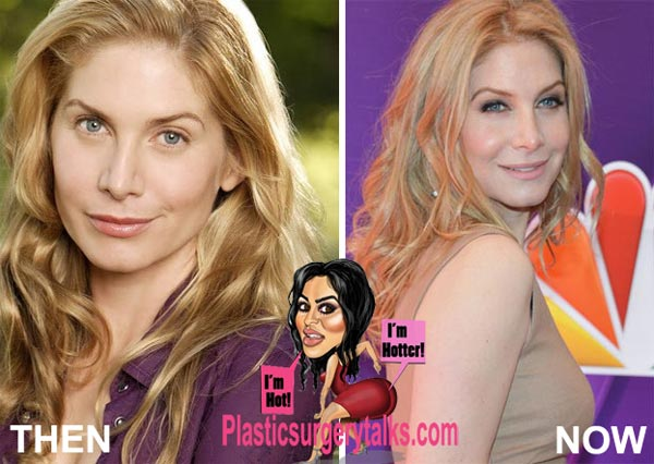 Elizabeth Mitchell Plastic Surgery Before & After