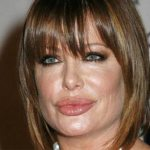 Kelly Lebrock Plastic Surgery – Obvious Lip Augmentation