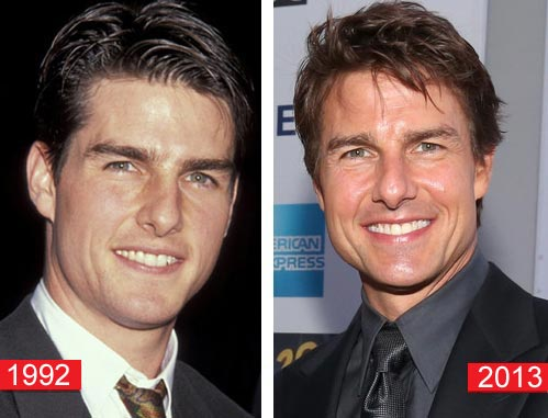 Tom Cruise Plastic Surgery Before & After