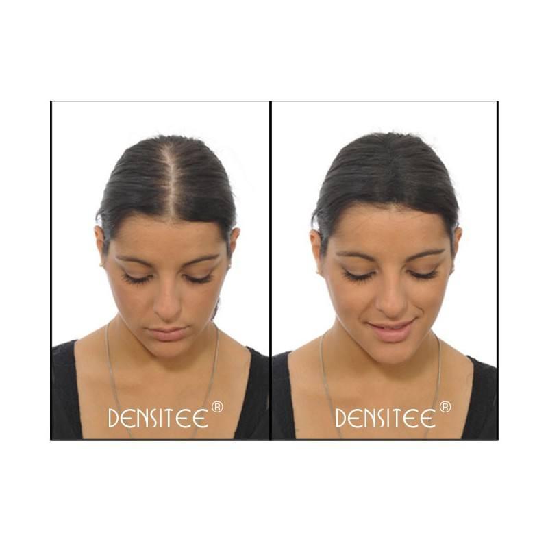 Haarausfall Bei Frauen Lichte Haarzonen Verdecken Mit Densitee