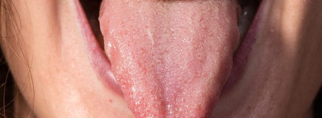 Check Five Things That Happens When You Don't Brush Your Tongue