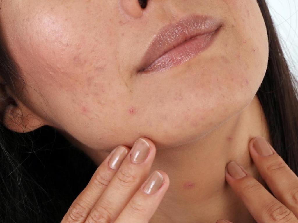 How To Deal With Breakouts, Stretch Marks And Pigmentation During Pregnancy