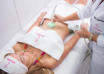 Estética - Radiofrequência corporal