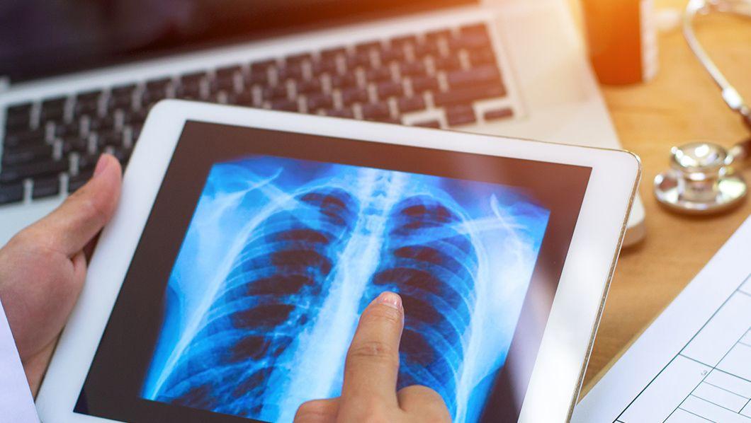 El mesotelioma, una rara forma de cáncer que se desarrolla en el revestimiento protector de muchos órganos internos, es causado por la exposición al asbesto, como por ejemplo al respirar o ingerir asbesto en el lugar de trabajo.los síntomas de mesotelioma podrían no aparecer … Alto riesgo de sufrir mesotelioma en LA | Abogado de