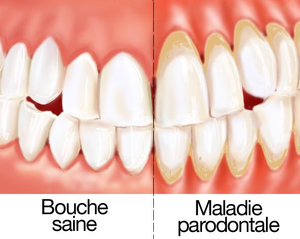 dents qui se dechaussent traitement naturel