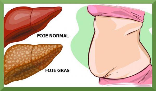 mauvaise haleine cause foie