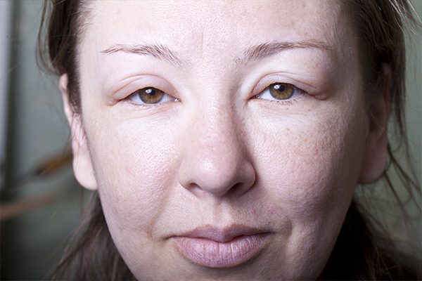 Causes et remèdes naturels d un visage enflé ⋆ 4292285cbc4