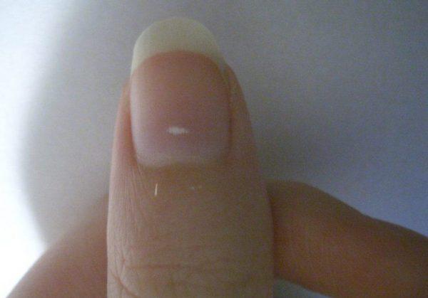 A Quoi Correspondent Les Points Blancs Sur Vos Ongles