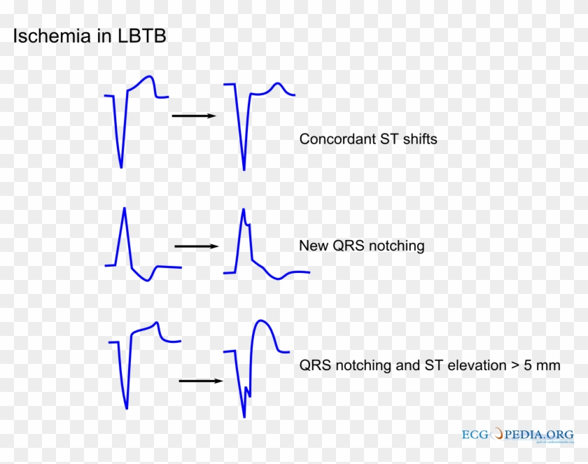 What Is The Difference Between Ischemia And Infarction ...