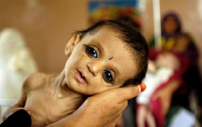 बच्चालाई कुपोषण भयो ? चिन्ता नलिनुस्