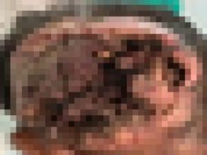 【超!閲覧注意】脳を生きたまま食べられてるのに、なぜかまだ死なない人間の映像
