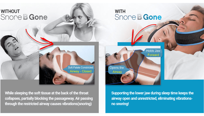 Snore B Gone Anti Snoring Solution