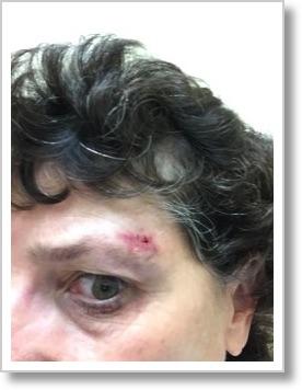 Allison cut head