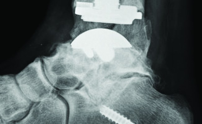 Biomechanical Considerations With Total Ankle Arthroplasty