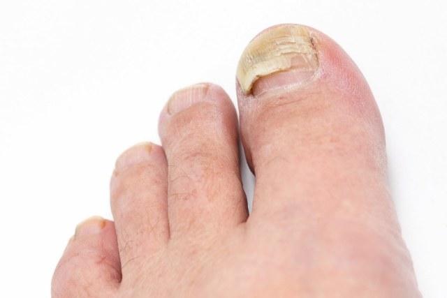 ¿Qué hago si la uña del pie está a punto de caerse?