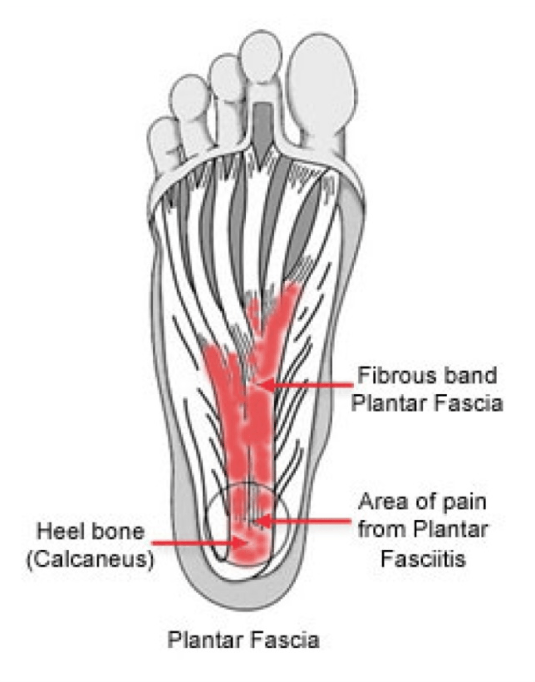 hight resolution of plantar fasciitis plantar fasciitis