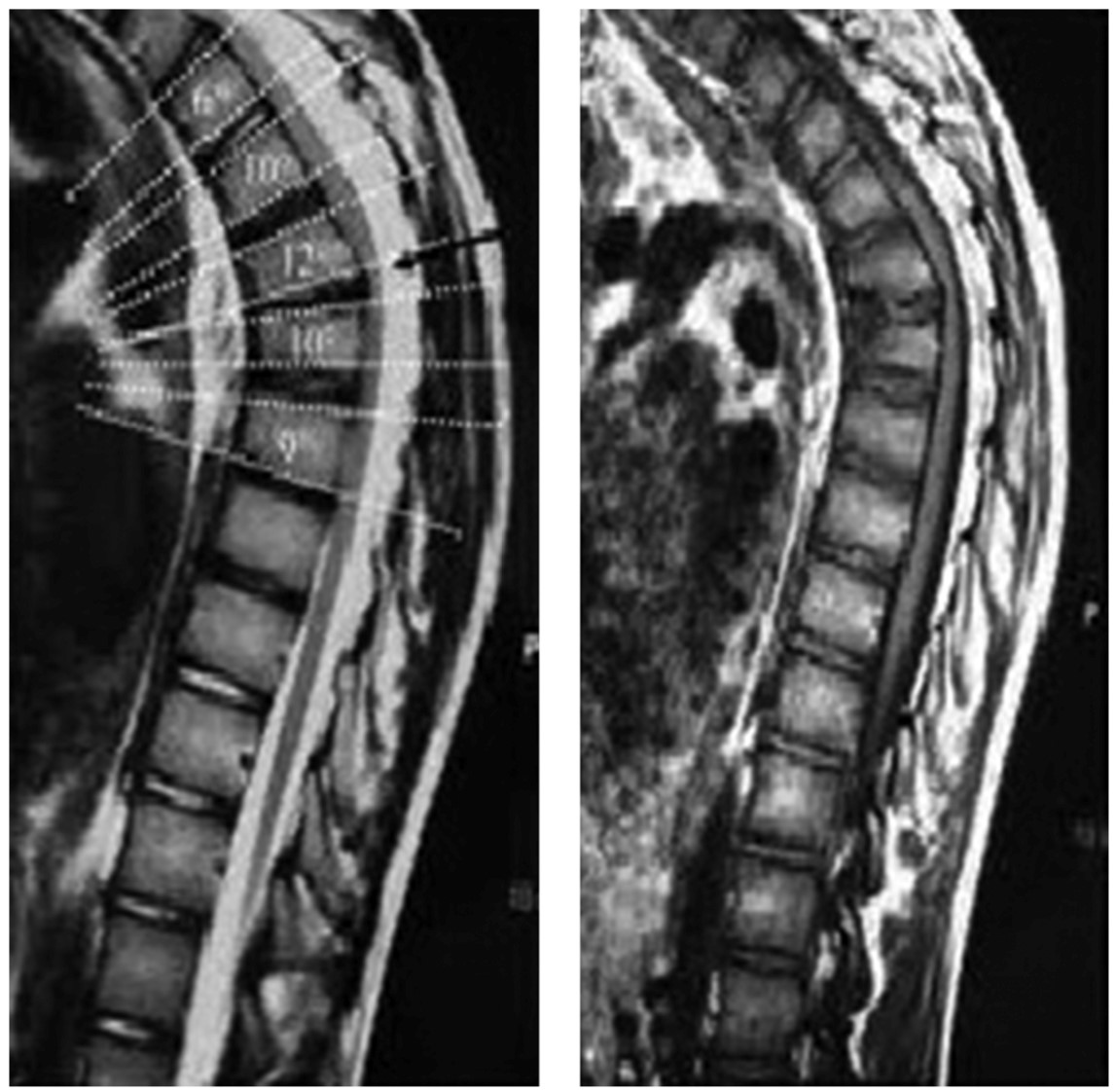 Scheuermann's Disease | POGO Physio Gold Coast
