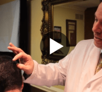 NJ Hair Restoration Video