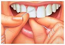 Dental flossing