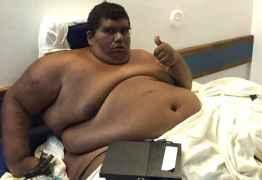 Paraibano Carlinhos recebe alta de Hospital após emagrecer mais de 150 quilos