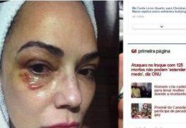 Divulgada imagem de Luiza Brunet com hematoma no rosto