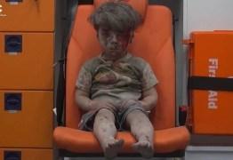 VEJA VÍDEO – Síria tem novo bombardeio, e imagem de menino ensanguentado comove web