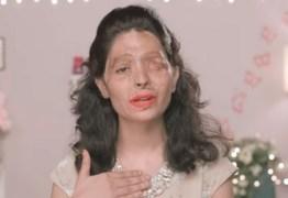 Moça que sobreviveu a ataque com ácido vai desfilar na Semana de Moda de NY