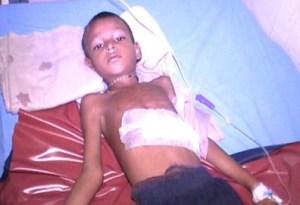 garoto1 396x271 300x205 - Garoto faz cirurgia para tirar tumor, mas médico encontra irmão gêmeo