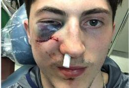 Jogador de Hockey quase perde olho durante partida