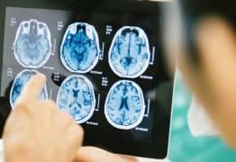 Entenda a relação entre proteínas do cérebro, zika e microcefalia