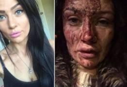 Jogador espanca namorada e ela mostra o estrago nas redes sociais