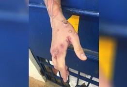 Doença altamente contagiosa se espalha em penitenciária e contamina visitantes