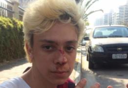 Youtuber Victor Meyniel é agredido: 'Para quem diz que homofobia não existe'