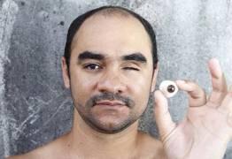 Adiado julgamento de recurso de fotógrafo que perdeu olho em protesto