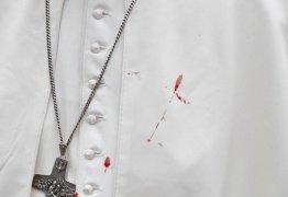 Papa Francisco tem o rosto ferido durante visita à Colômbia
