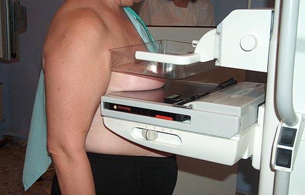 mamografia danosa 2 - Polêmica - Mamografia: Um exame doloroso, ineficaz e que aumenta o risco de ter câncer em mais de 200%