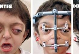 Uma síndrome rara desfigurou seu rosto ao nascer; veja como ele ficou após o tratamento
