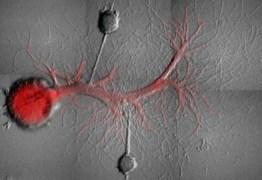 Ciência se aproxima da criação de mentes sem lembranças