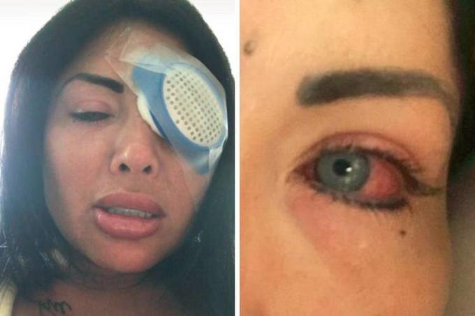 mulher perde visao cirurgia controversa 03 1 - 'Perdi a visão pra sempre', diz modelo após mudar a cor dos olhos