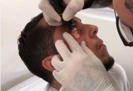 Thammy Miranda faz procedimento para corrigir olheiras com tatuagem -VEJA VÍDEO