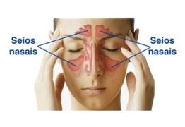COMO DIAGNOSTICAR: O que é Sinusite e como tratar com remédios caseiros – VEJA VÍDEO