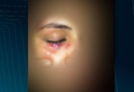 DESTAQUE NACIONAL: Aluna da UFCG denuncia agressão ao se recusar a dançar com rapaz em calourada