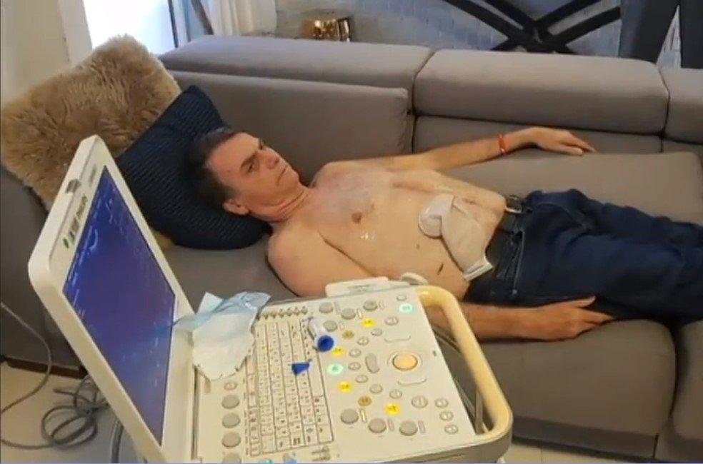 xScreenshot 3 8.jpg.pagespeed.ic .QCE2XBMAYa - NOVA CIRURGIA: Bolsonaro deve fazer uma nova cirurgia para retirada de colostomia