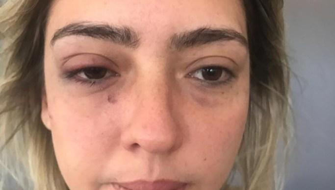 WhatsApp Image 2018 12 08 at 22.20.40 - CASO TYRONE: Para não ser preso prefeito pede que irmão fale com vítima de agressão
