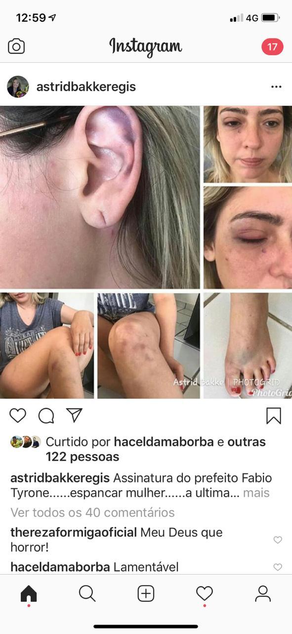 WhatsApp Image 2018 12 09 at 1.59.34 PM - CASO TYRONE: Para não ser preso prefeito pede que irmão fale com vítima de agressão