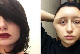 ALERGIA EXTREMA: Jovem decide pintar o cabelo em casa e quase morre após ficar deformada