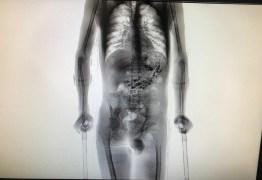 Preso volta de saída temporária com 10 celulares e mais de 50 outros objetos no estômago