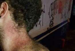 Festa de calouros da PUC termina com alunos agredidos por policiais