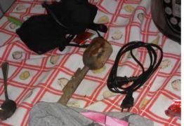 IMAGENS FORTES: Homem tenta assassinar ex companheira com soquete de feijão e cabos de energia