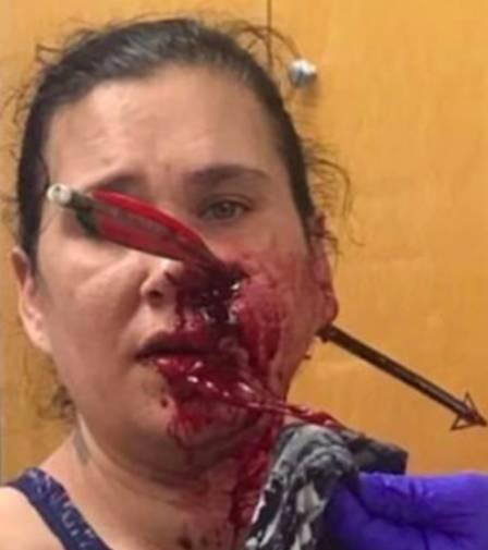 xblog janet.jpg.pagespeed.ic .NHtAIGoovx - Mulher fica com flecha cravada no rosto ao salvar filho durante briga